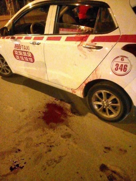 Ha Noi: Bat nghi pham dam thung co tai xe taxi trong dem - Anh 4