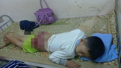 Thai Nguyen: Xot xa be 13 tuoi bi bo danh bam dap, mong ruom mau phai nhap vien cap cuu - Anh 3