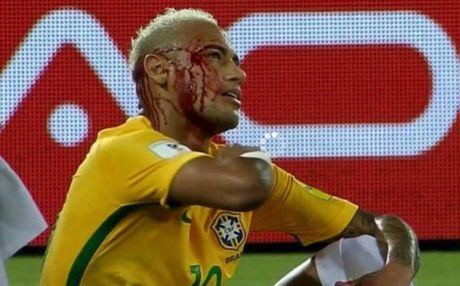 'Gat tay' lam Neymar do mau, Duk con muon duoc ton trong - Anh 1