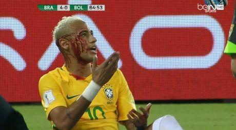 "Sau tinh huong nay, Neymar se ""cach"" xau kim den gia - Anh 1"