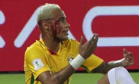 Hau ve Bolivia cao giong giai thich ly do thuc cui cho khien Neymar do mau - Anh 2