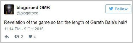 Thao chun buoc, Gareth Bale de lo mai toc dai mem mai nhu... thieu nu - Anh 5