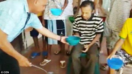Nhung 'bo xuong di dong' chet mon vi doi trong nha tu Venezuela - Anh 5