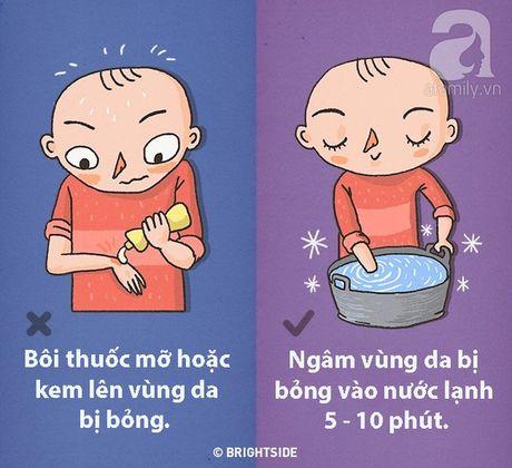 Trong 9 tinh huong nay, neu so cuu sai cach co the de doa den chinh tinh mang cua ban - Anh 3