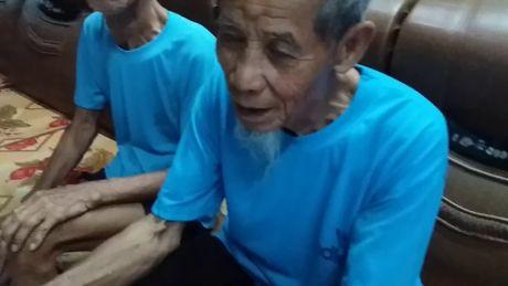 Nhung dieu 'la' ve cap song sinh gan tram tuoi o Hai Duong - Anh 16