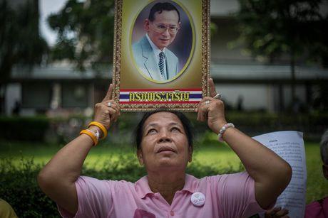 Suc khoe nha vua Thai Lan ngay cang nguy kich - Anh 1
