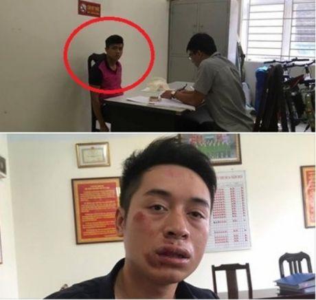 Vi pham luat giao thong, 9X manh dong dam vao mat CSGT - Anh 1