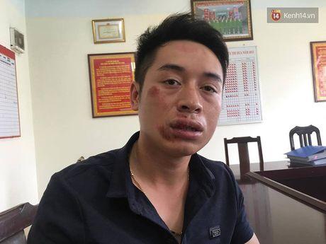 Ha Noi: Bi chan bat vi khong doi mu bao hiem, nam thanh nien danh gay rang CSGT - Anh 2