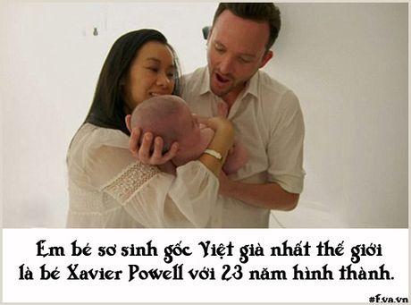 """Nhung chuyen sinh no dac biet khong ai co the """"dung hang"""" - Anh 10"""