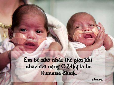 """Nhung chuyen sinh no dac biet khong ai co the """"dung hang"""" - Anh 4"""