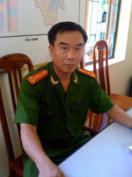 Them mot nghe si Viet qua doi vi can benh ung thu - Anh 2
