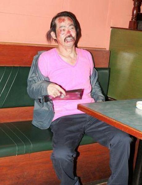 Bi kich dan sao phim 'Tuyet dinh Kungfu': Nguoi benh tat, ke khong nha - Anh 2