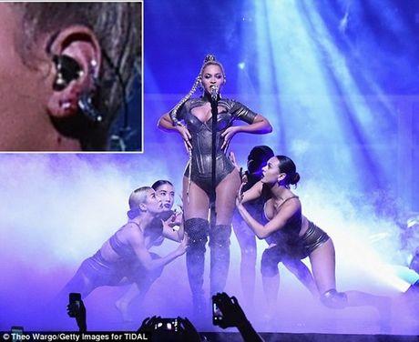 Beyonce dien sung bat chap tai nan rach tai chay mau - Anh 1