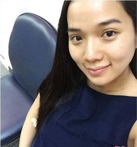 Dung sung sot khi cac ba vo trong showbiz Viet khoe mat moc - Anh 9